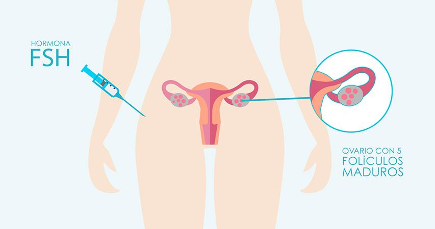 los expertos en reproduccion asistida de instituto de fertilidad mallorca te explican el paso a a paso del tratamiento de fertilidad fecudacion in vitro
