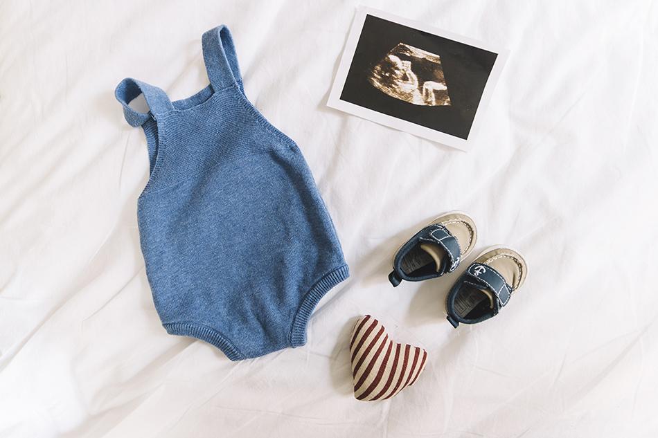hoy en nuestro blog de infertilidad te contamos todo sobre el sindrome de turnes, si puedes quedarte embarazada, si es hereditario enterate de todo de mano de nuestros expertos